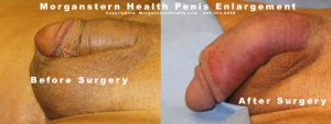 grow penis before after surgery longer