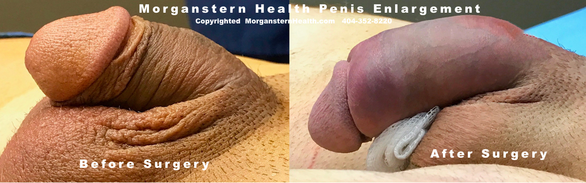 Best penis pump results discovered
