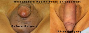 male enhancement surgery before after photos