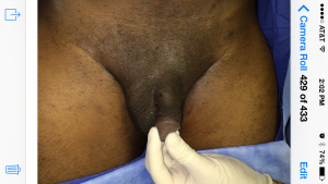 before micropenis enlargment dickson