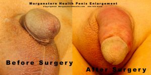 Closeup photos micro penises post surgery