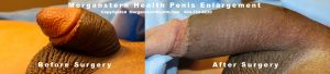 Micro penile syndrome b4 after