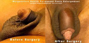 penis extension micro penile disorder