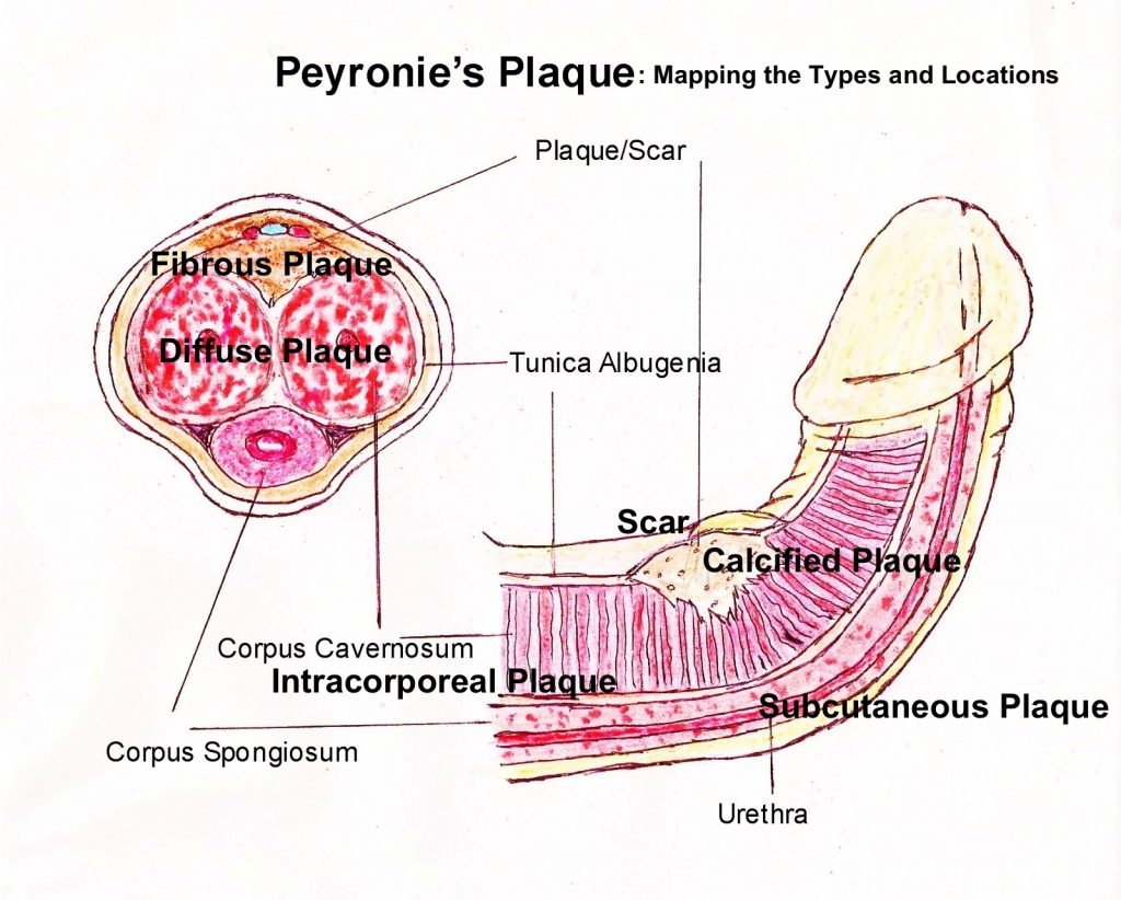 Peyronie's Plaque Types