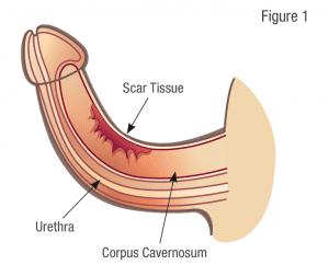 peyronies scar tissue penile correction image
