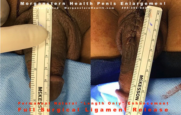 penis measured before after surgery