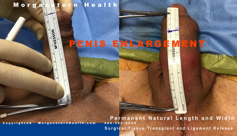 b4 after penis pics girth surgery